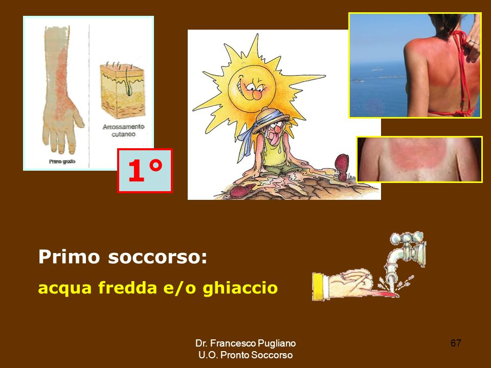 1° Primo soccorso: acqua fredda e/o ghiaccio Dr. Francesco Pugliano