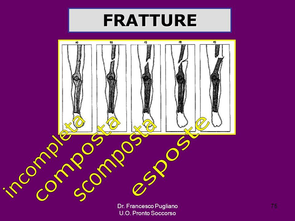 FRATTURE incompleta esposte composta scomposta Dr. Francesco Pugliano