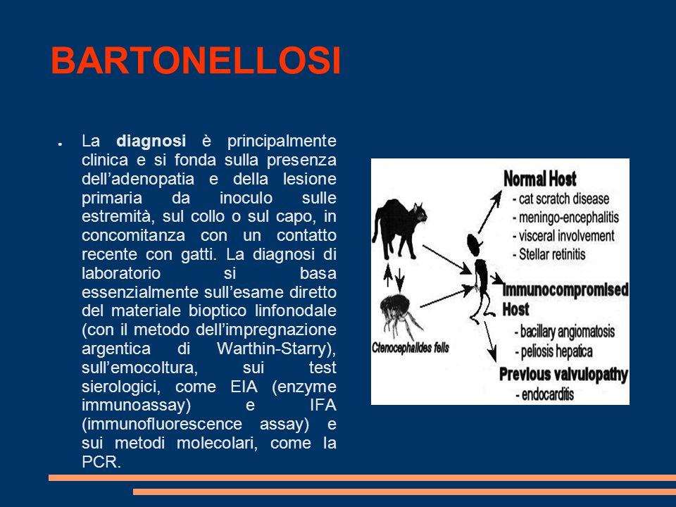 BARTONELLOSI