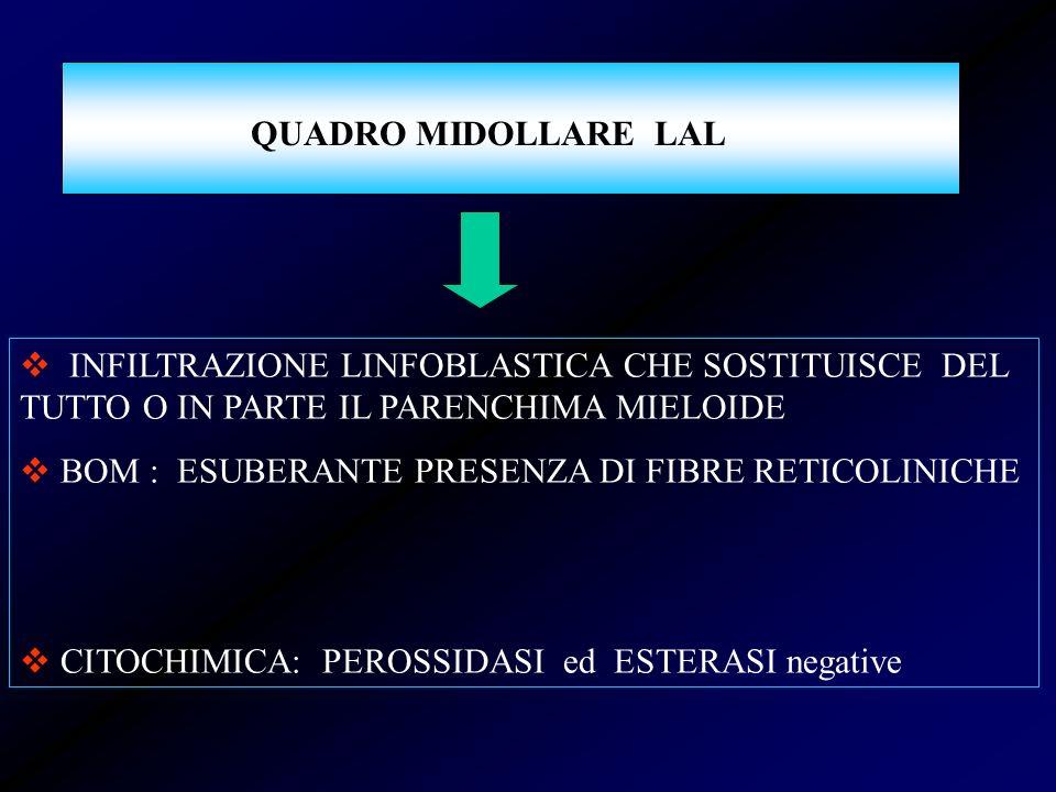 QUADRO MIDOLLARE LAL INFILTRAZIONE LINFOBLASTICA CHE SOSTITUISCE DEL TUTTO O IN PARTE IL PARENCHIMA MIELOIDE.