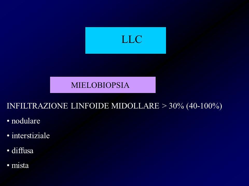 LLC MIELOBIOPSIA INFILTRAZIONE LINFOIDE MIDOLLARE > 30% (40-100%)