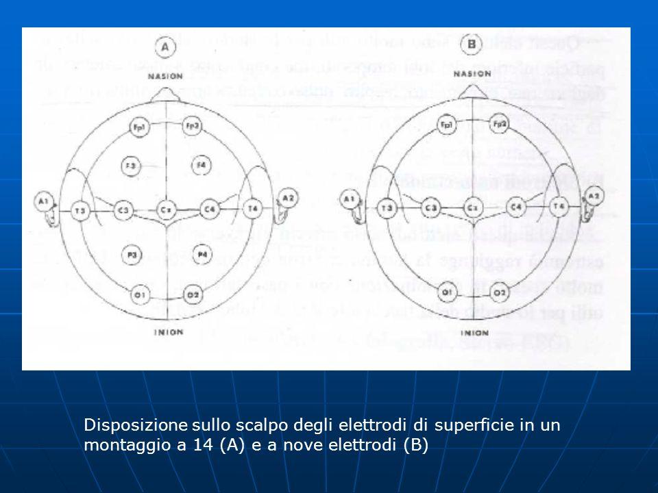 Disposizione sullo scalpo degli elettrodi di superficie in un