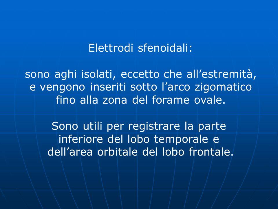 Elettrodi sfenoidali: sono aghi isolati, eccetto che all'estremità,