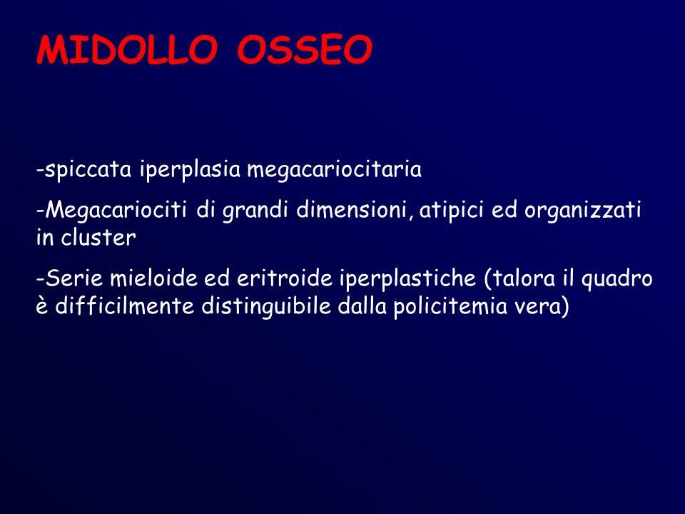 MIDOLLO OSSEO spiccata iperplasia megacariocitaria