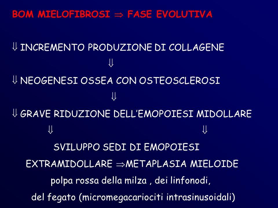 BOM MIELOFIBROSI  FASE EVOLUTIVA