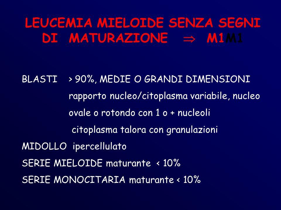 LEUCEMIA MIELOIDE SENZA SEGNI DI MATURAZIONE  M1M1