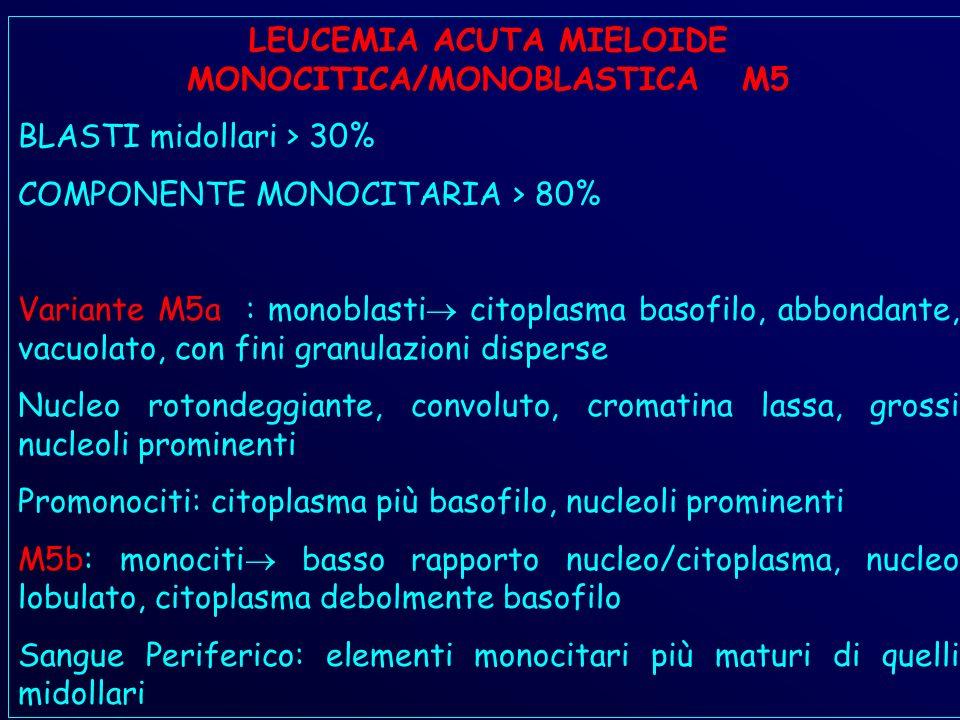 LEUCEMIA ACUTA MIELOIDE MONOCITICA/MONOBLASTICA M5
