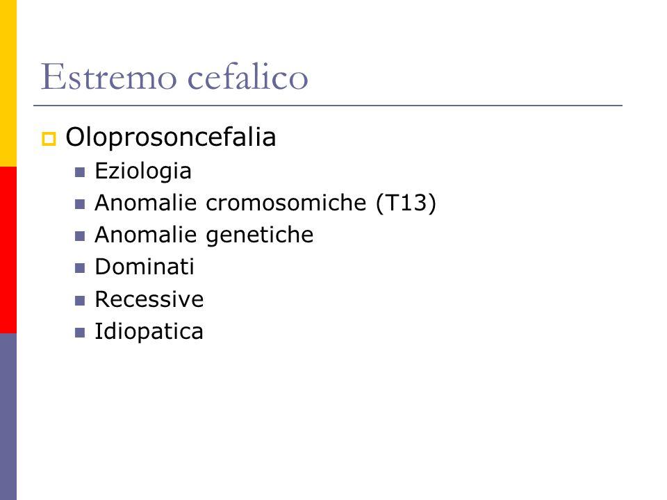 Estremo cefalico Oloprosoncefalia Eziologia