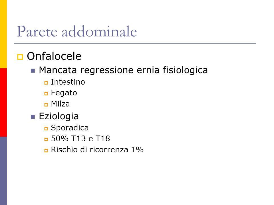Parete addominale Onfalocele Mancata regressione ernia fisiologica