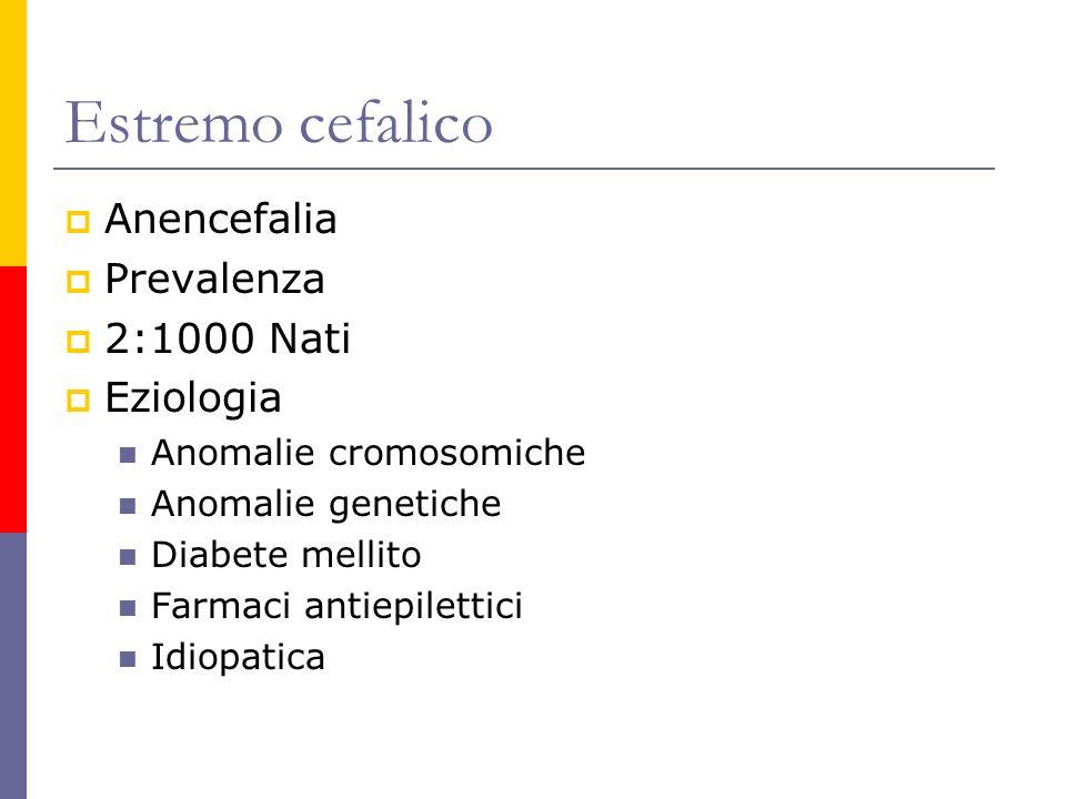 Estremo cefalico Anencefalia Prevalenza 2:1000 Nati Eziologia