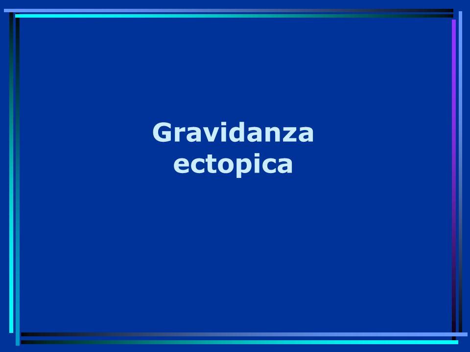 Gravidanza ectopica