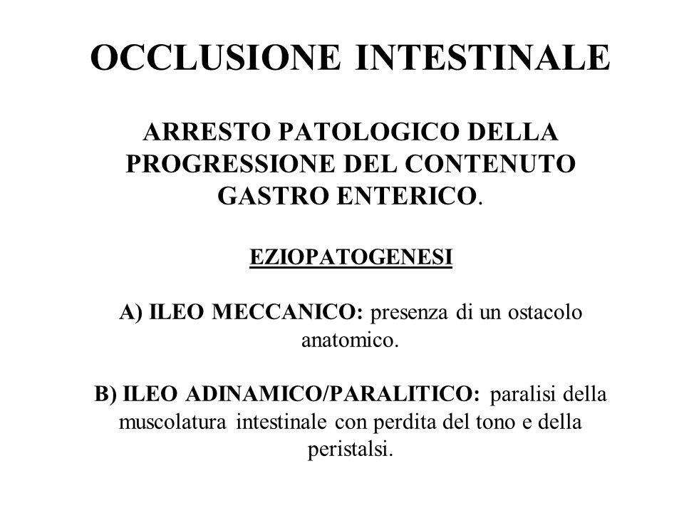 OCCLUSIONE INTESTINALE ARRESTO PATOLOGICO DELLA PROGRESSIONE DEL CONTENUTO GASTRO ENTERICO.