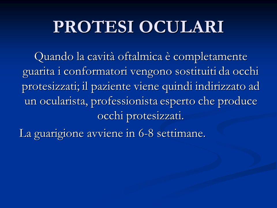 PROTESI OCULARI