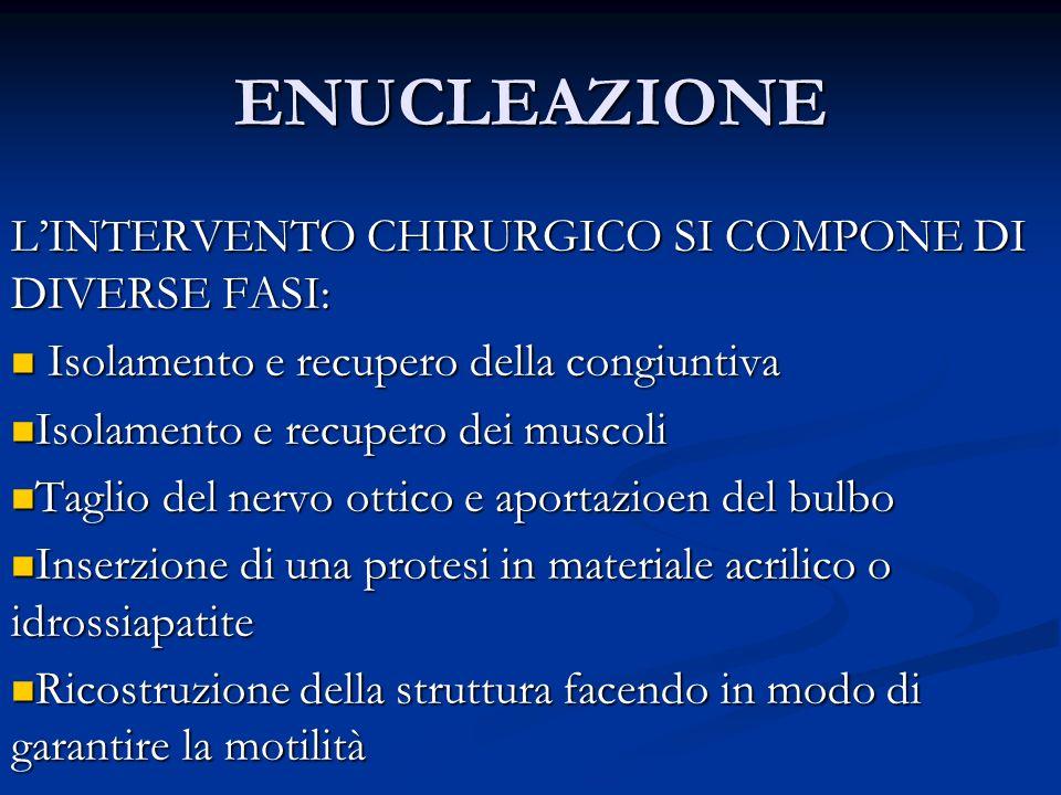 ENUCLEAZIONE L'INTERVENTO CHIRURGICO SI COMPONE DI DIVERSE FASI: