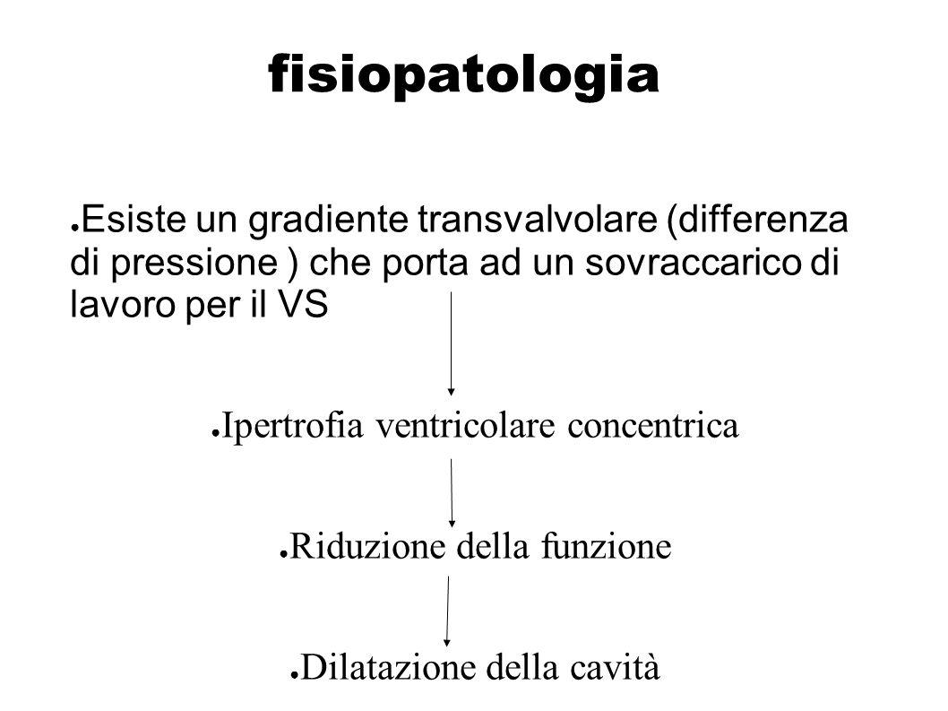 fisiopatologia Esiste un gradiente transvalvolare (differenza di pressione ) che porta ad un sovraccarico di lavoro per il VS.