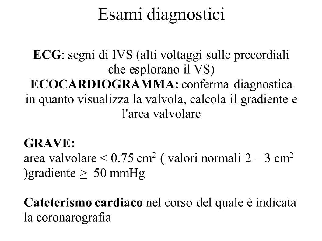 Esami diagnostici ECG: segni di IVS (alti voltaggi sulle precordiali che esplorano il VS)