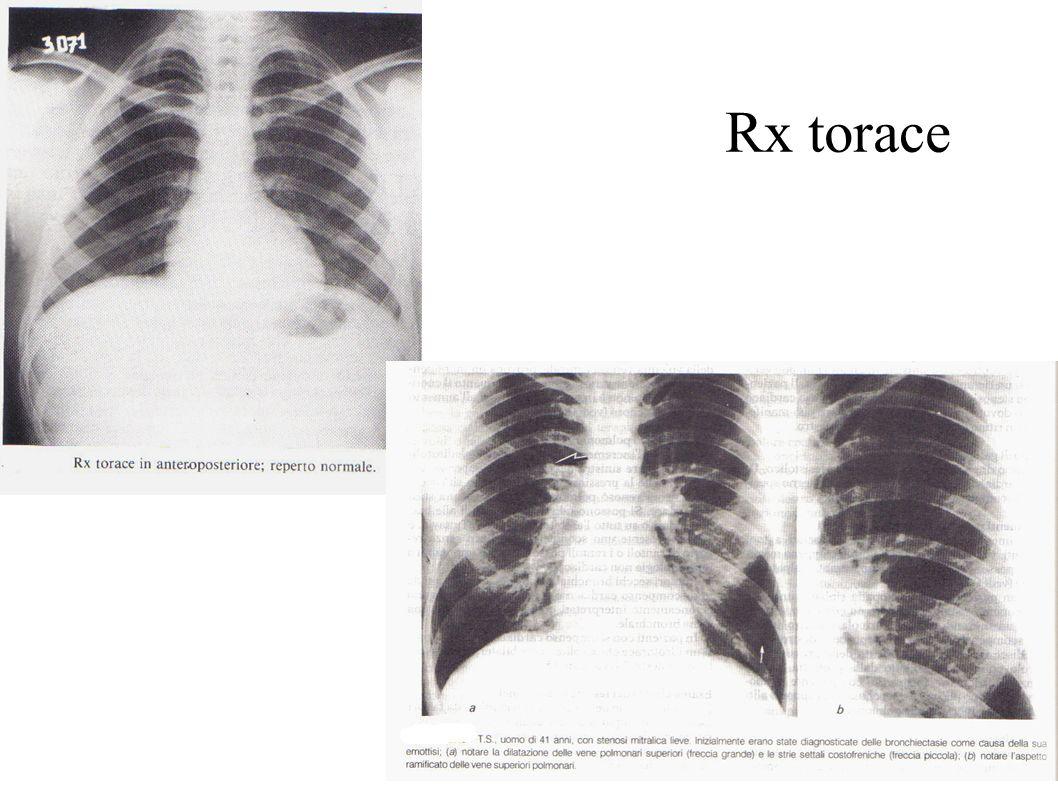 Rx torace