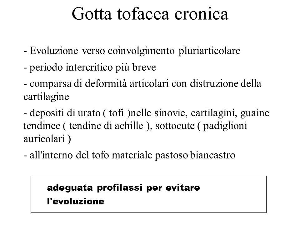 Gotta tofacea cronica - Evoluzione verso coinvolgimento pluriarticolare. - periodo intercritico più breve.