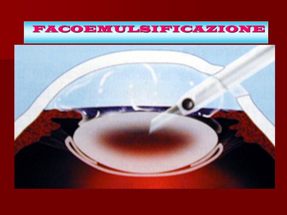 FACOEMULSIFICAZIONE Come avviene l'intervento
