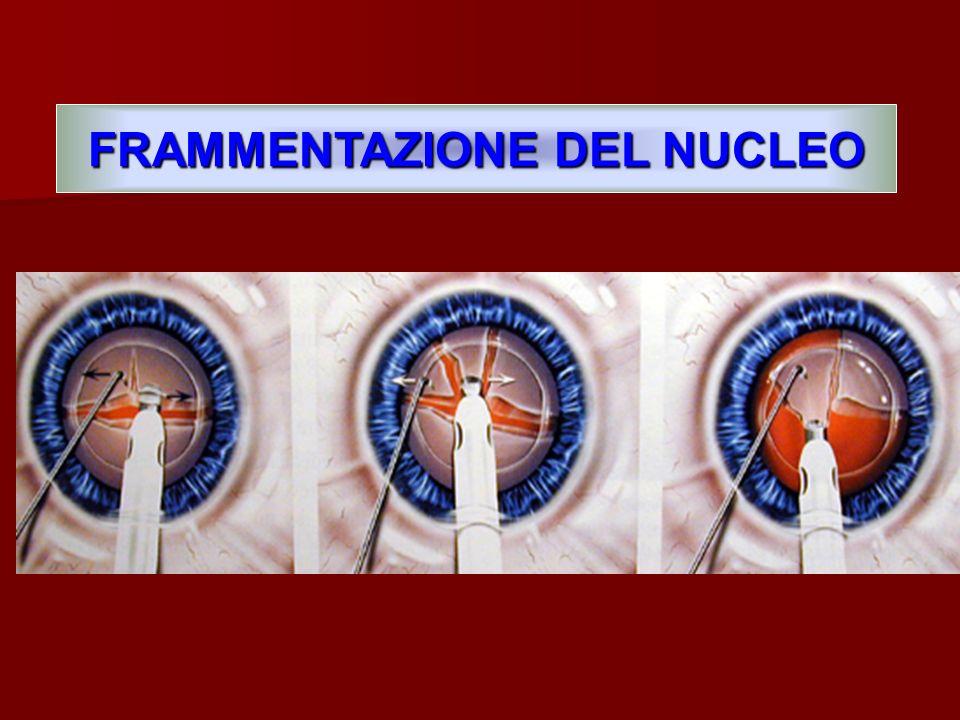 FRAMMENTAZIONE DEL NUCLEO