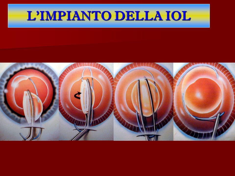 L'IMPIANTO DELLA IOL Il vantaggio della lente intraoculare