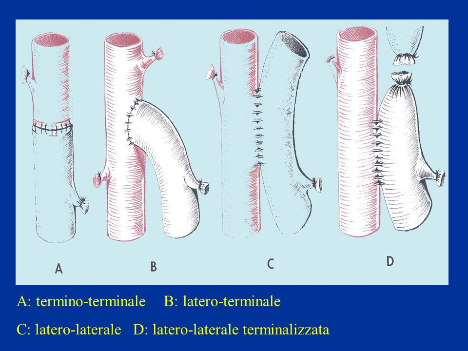 A: termino-terminale B: latero-terminale