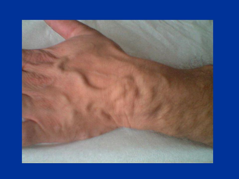 LE FISTOLE DISTALI FAV alla Tabacchiera Anatomica (latero-terminale)