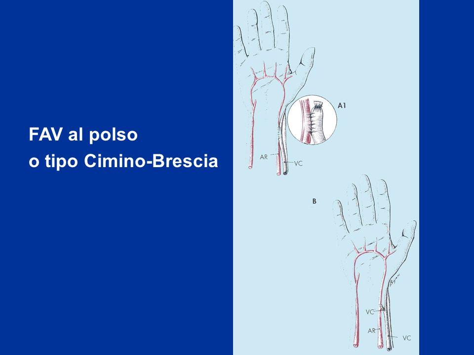 FAV al polso o tipo Cimino-Brescia