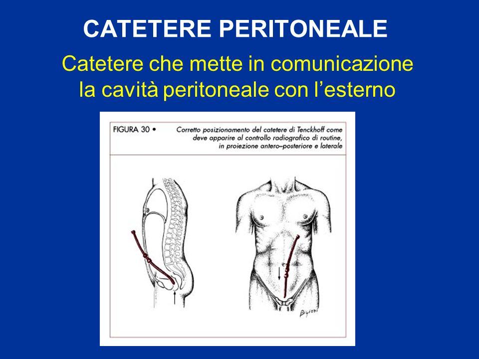 CATETERE PERITONEALE Catetere che mette in comunicazione la cavità peritoneale con l'esterno
