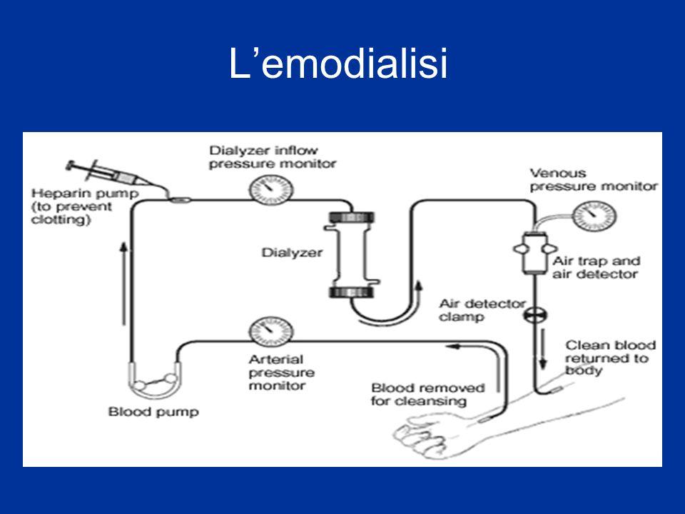L'emodialisi