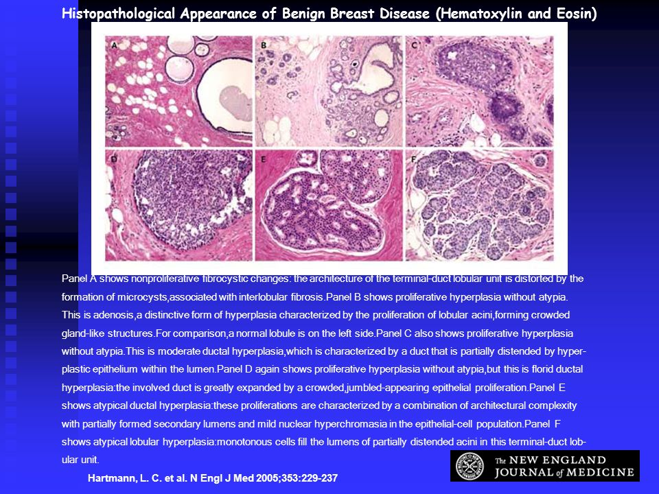 Histopathological Appearance of Benign Breast Disease (Hematoxylin and Eosin)