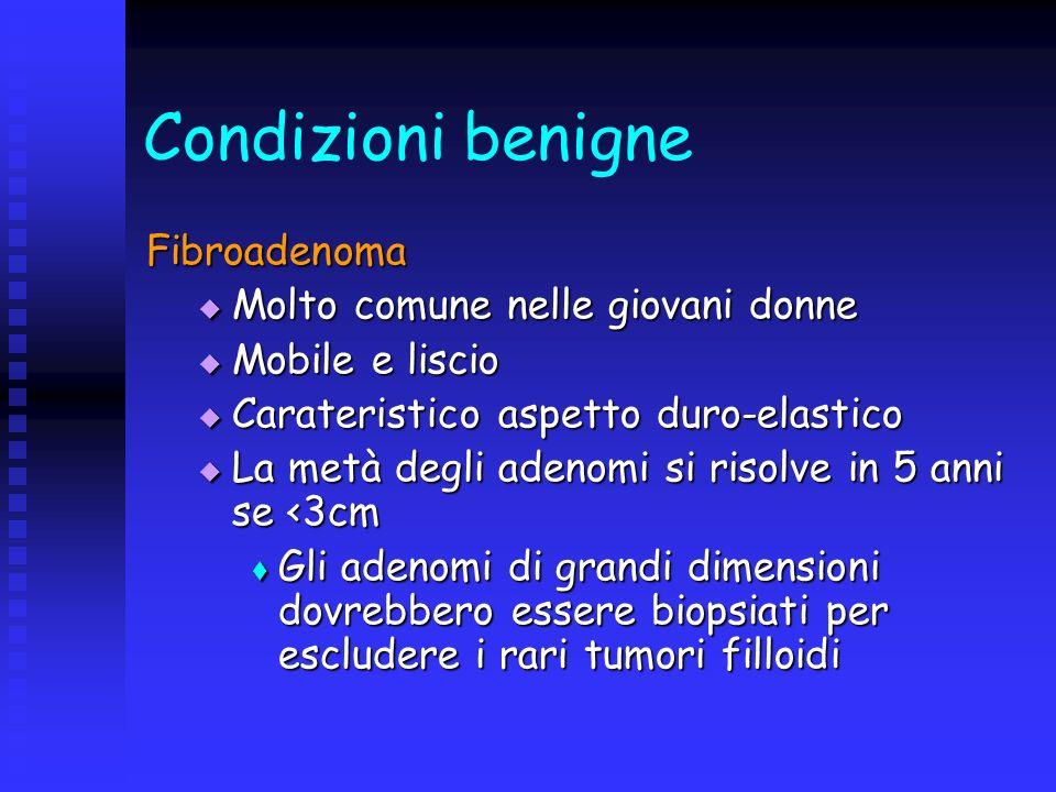 Condizioni benigne Fibroadenoma Molto comune nelle giovani donne