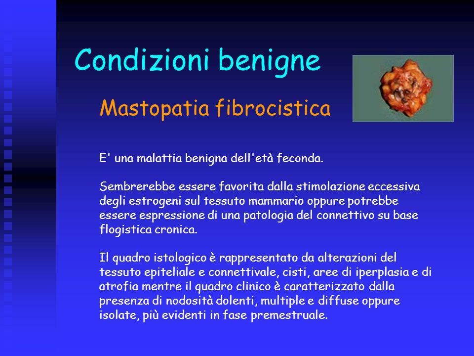 Condizioni benigne Mastopatia fibrocistica.
