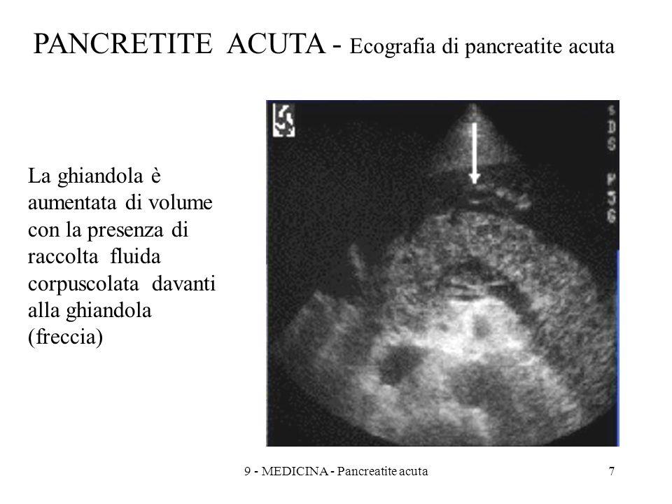 9 - MEDICINA - Pancreatite acuta