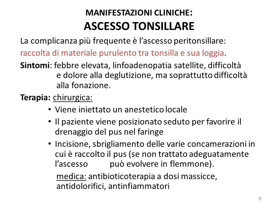 MANIFESTAZIONI CLINICHE: ASCESSO TONSILLARE