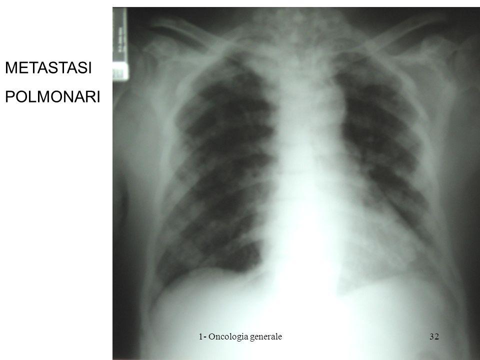 METASTASI POLMONARI 1- Oncologia generale