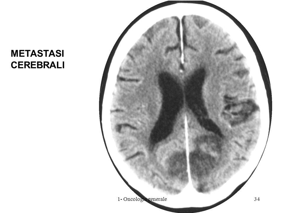 METASTASI CEREBRALI 1- Oncologia generale