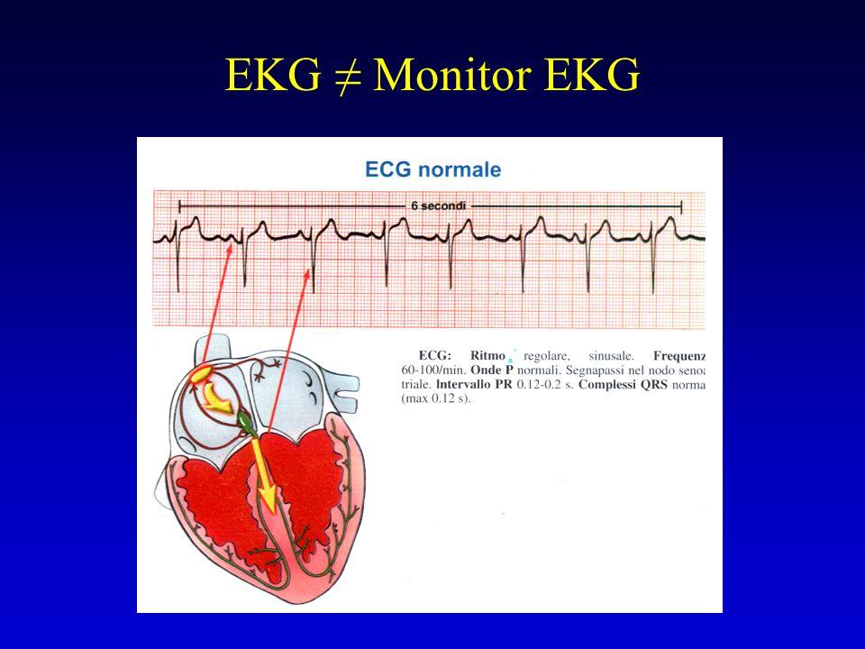 EKG ≠ Monitor EKG