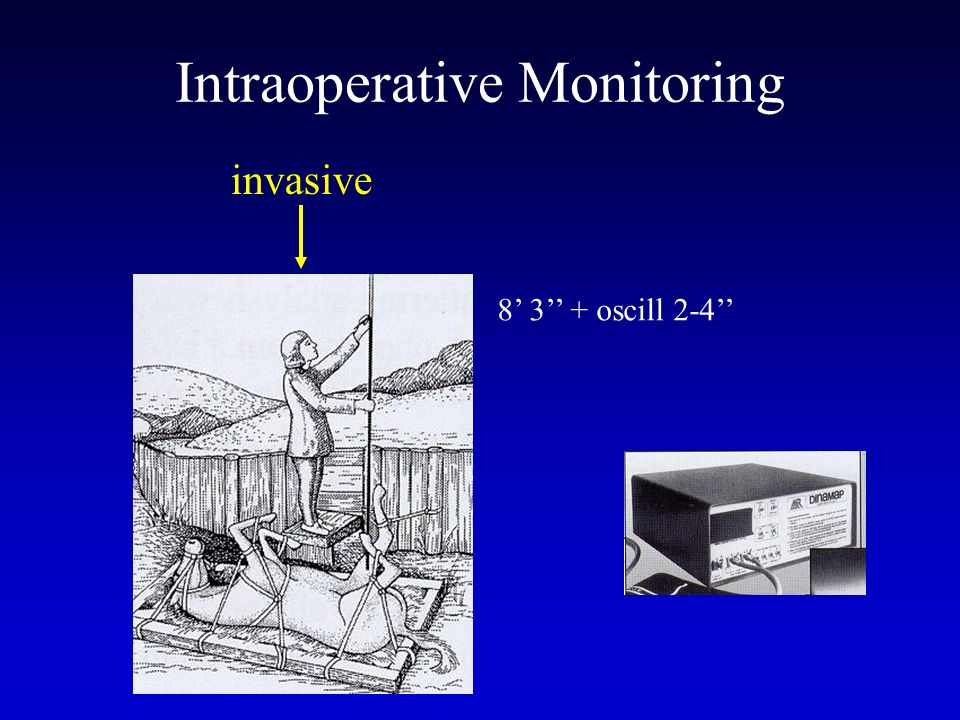 Intraoperative Monitoring
