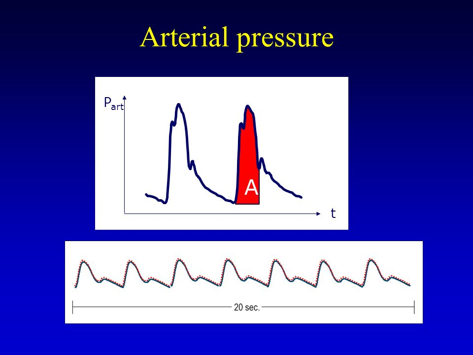 Arterial pressure A Part t