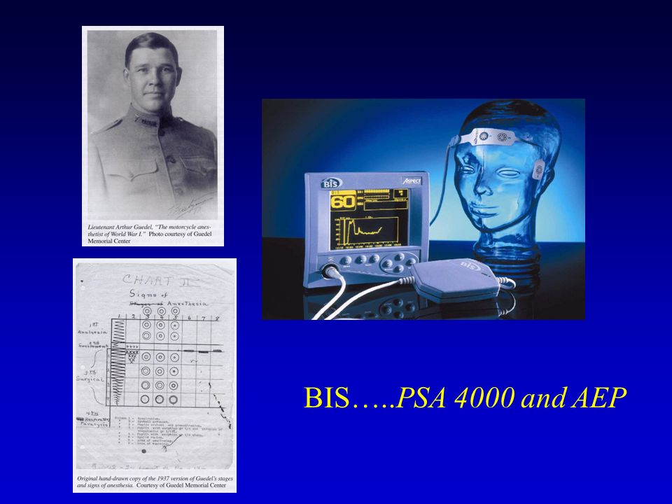 BIS…..PSA 4000 and AEP
