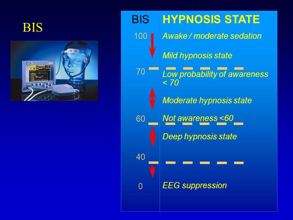 BIS BIS HYPNOSIS STATE 100 70 60 40 Awake / moderate sedation