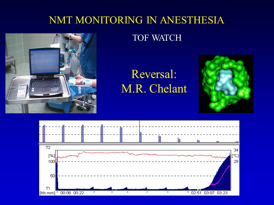 NMT MONITORING IN ANESTHESIA