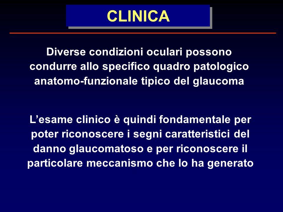 CLINICA Diverse condizioni oculari possono condurre allo specifico quadro patologico anatomo-funzionale tipico del glaucoma.