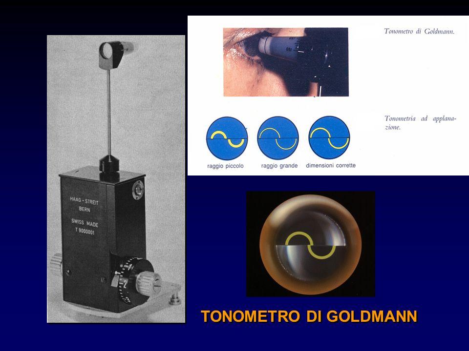 TONOMETRO DI GOLDMANN