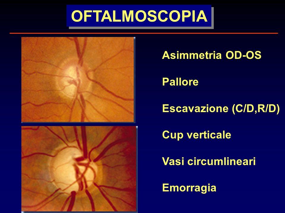 OFTALMOSCOPIA Asimmetria OD-OS Pallore Escavazione (C/D,R/D)