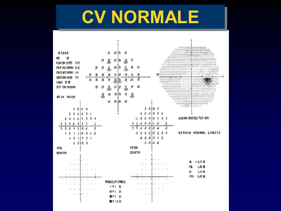 CV NORMALE