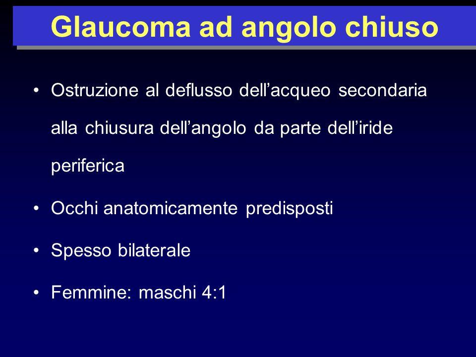 Glaucoma ad angolo chiuso