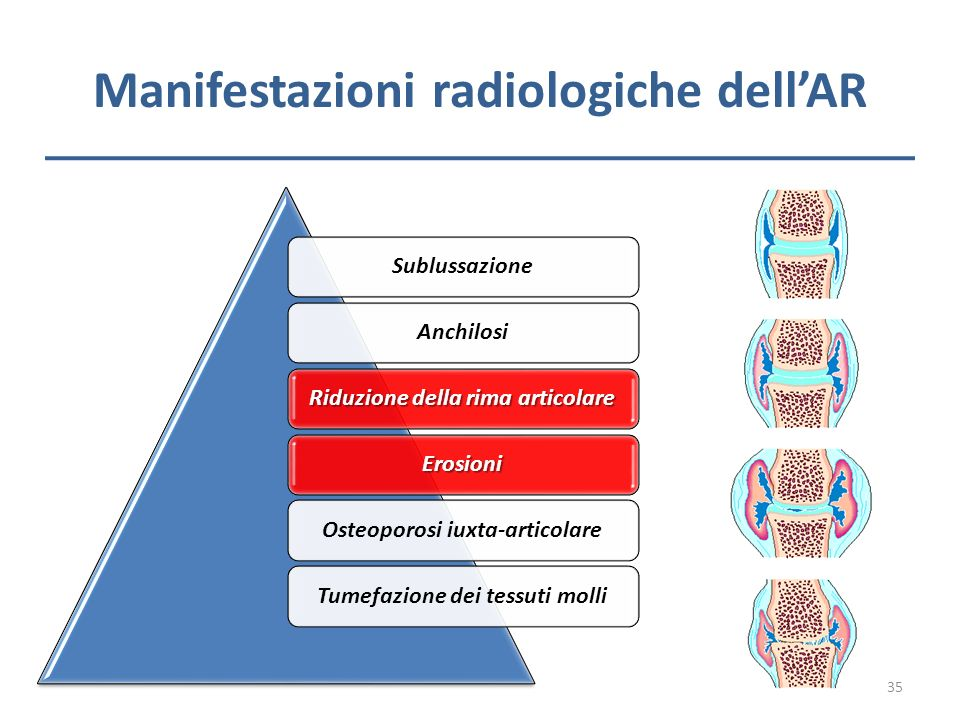 Manifestazioni radiologiche dell'AR