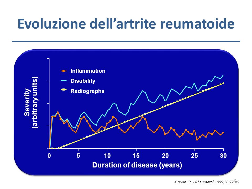 Evoluzione dell'artrite reumatoide